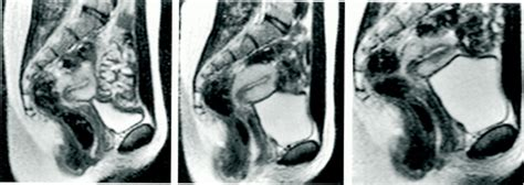 The book of acts gets a ct scan the stream jpg 1280x454