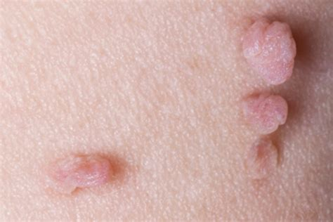 Vaginal skin tags causes, diagnosis, and how to remove them jpg 640x427