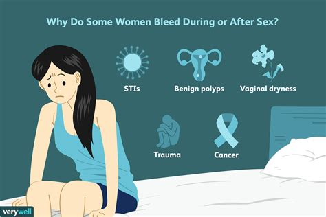 Bleeding after sex causes, treatment, and when to see a png 6250x4167
